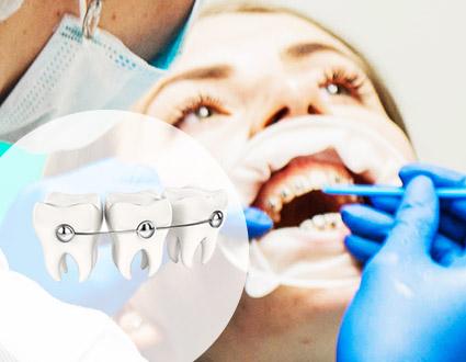 Быстрые самолигирующие брекеты SIA Orthodontic (Италия)