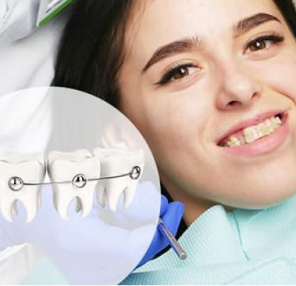 Керамические брекеты от SIA Orthodontic по самой выгодной цене в Харькове