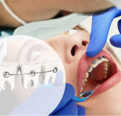 Металлические брекеты от SIA Orthodontic по лучшей цене в Харькове