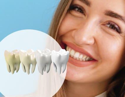 Био отбеливание зубов - белоснежная улыбка без вреда для эмали