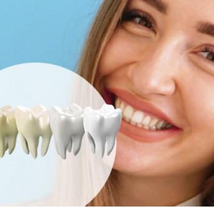 Био отбеливание зубов + отбеливающая паста в подарок - белоснежная улыбка без вреда для эмали