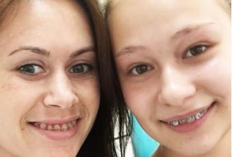 Как выбрать брекеты для выравнивания зубов?