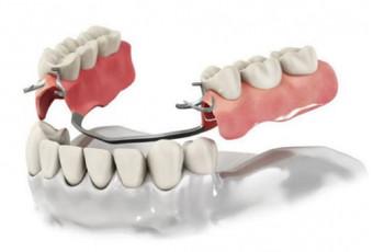 Бюгельный протез – лучший вариант среди съемных зубных конструкций