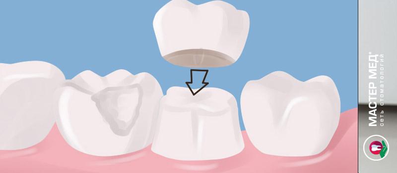 Металлокерамические коронки - лучшее решение для протезирования зубов в любом возрасте