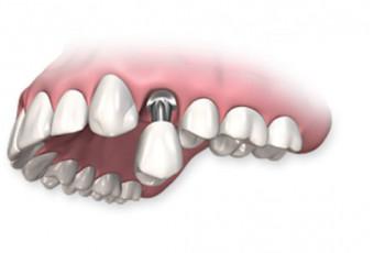 Зубные импланты последнего поколения: что это означает для пациента