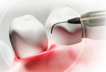 Особенности лазерной имплантации зубов