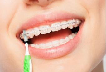 Уход за зубами во время ношения брекетов