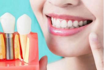 Уход за зубами после имплантации
