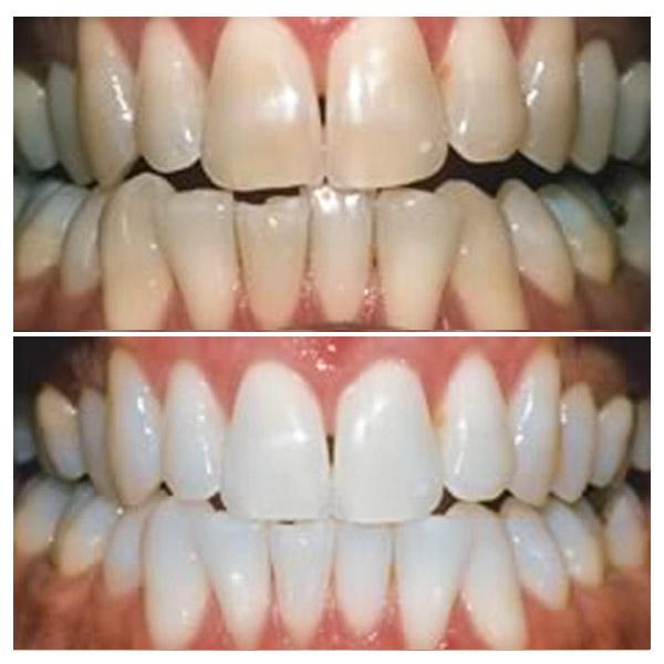отбеливание зубов цена москва zoom