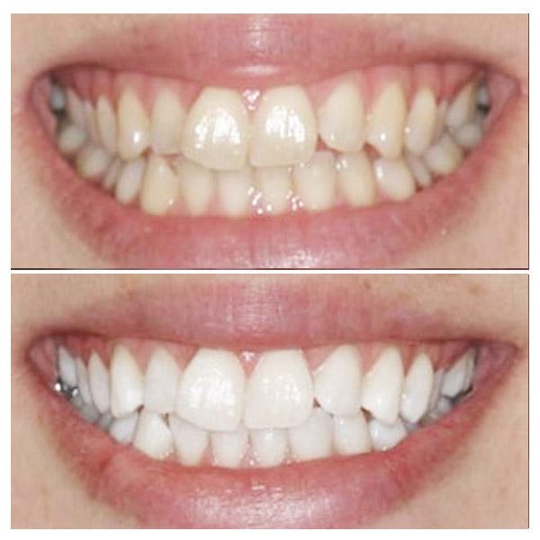 лазерное отбеливание зубов стоматология
