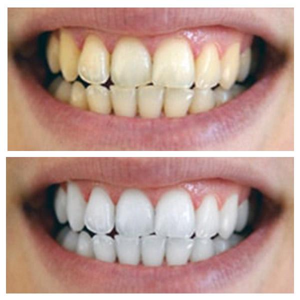 лазерное отбеливание зубов в новосибирске цена отзывы